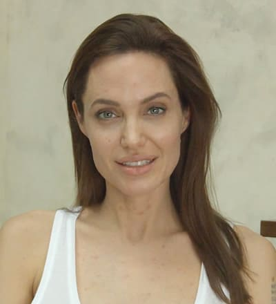 Angelina Jolie with chicken pox