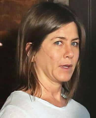 Jennifer Aniston Scar Face