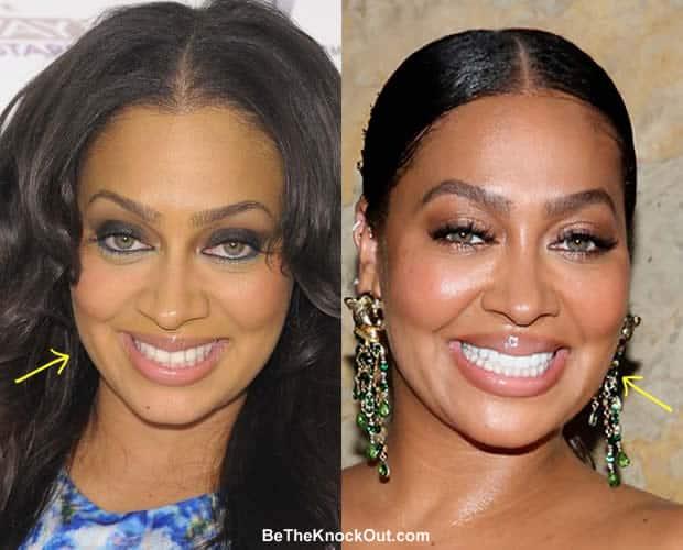 Did La La Anthony have botox?