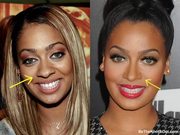 Has Lala Anthony had a nose job?