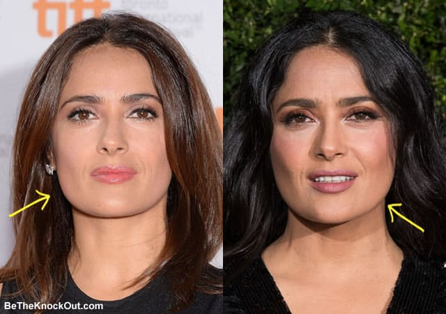 Did Salma Hayek have botox?