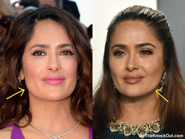 Did Salma Hayek get a facelift?