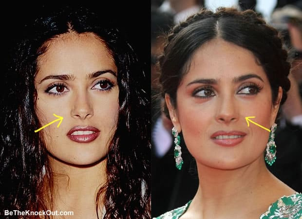 Has Salma Hayek had a nose job?