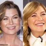Has Ellen Pompeo had botox treatments?