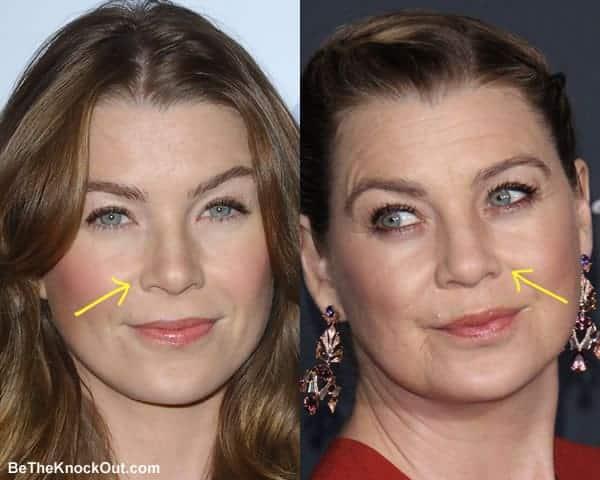 Did Ellen Pompeo have a nose job?