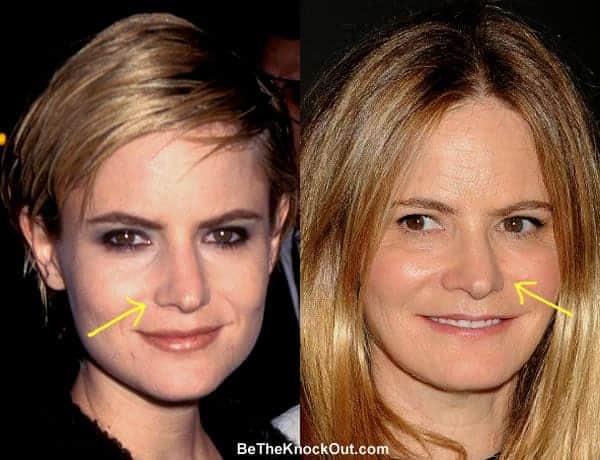 Has Jennifer Jason Leigh had a nose job?