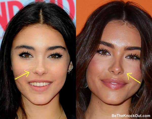 Has Madison Beer had a nose job?