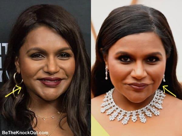 DId Mindy Kaling have botox?