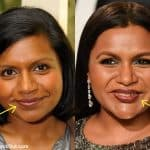 Has Mindy Kaling has lip injections?
