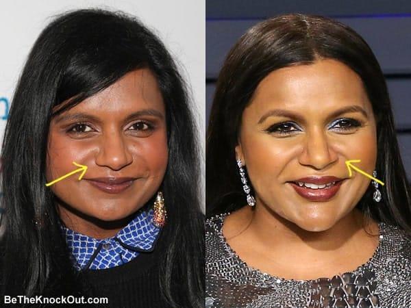 Did Mindy Kaling have a nose job?