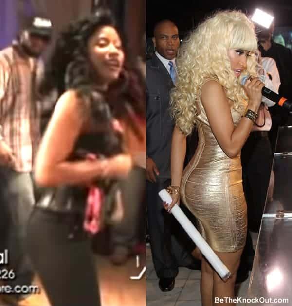 Does Nicki Minaj have butt implants?