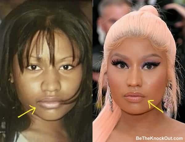 Did Nicki Minaj get lip injections?