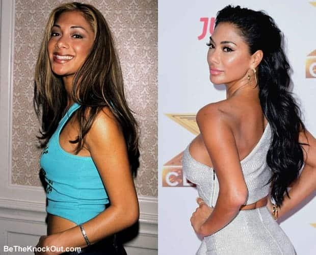 Has Nicole Scherzinger had a boob job?