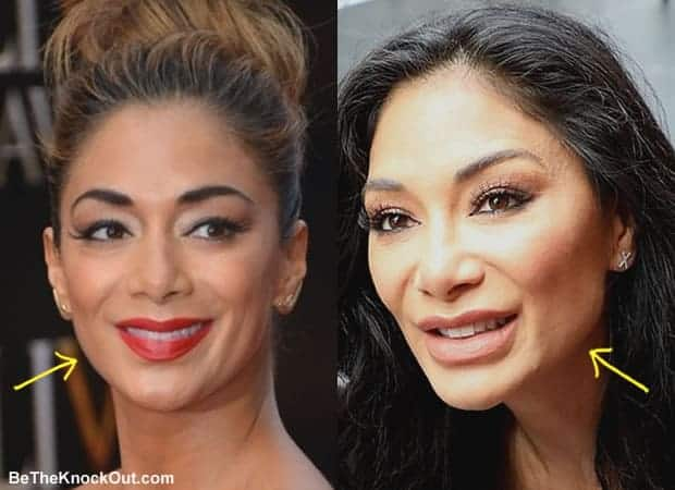 Did Nicole Scherzinger get botox?
