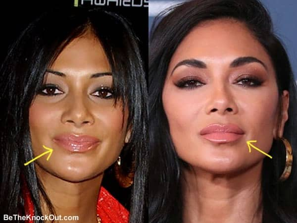 Did Nicole Scherzinger have lip injections?