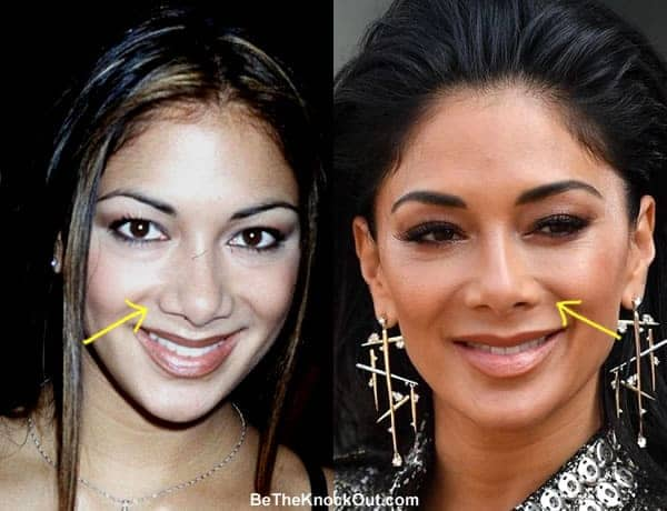 Did Nicole Scherzinger have a nose job?