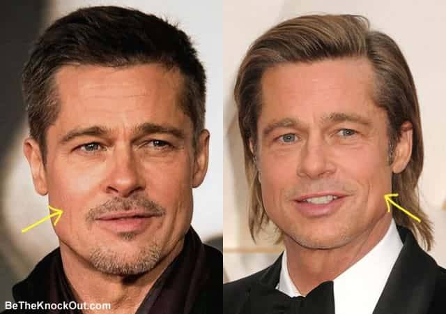 Did Brad Pitt have botox?