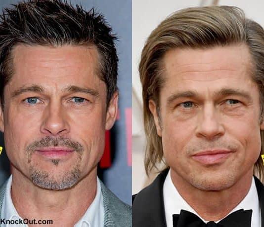 Did Brad Pitt get a facelift?