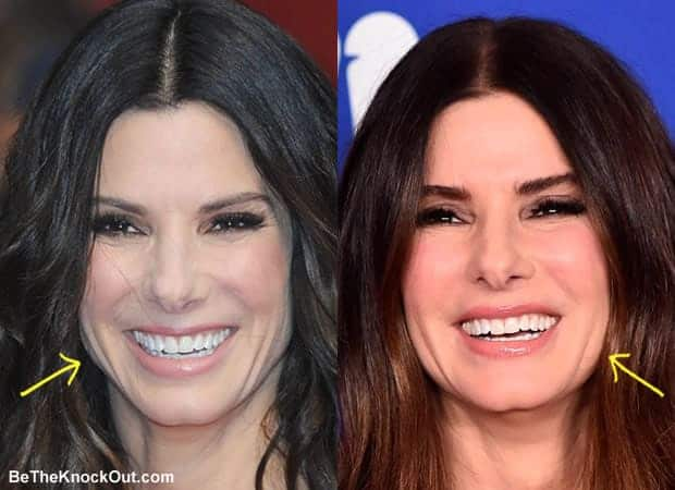 Did Sandra Bullock get botox?