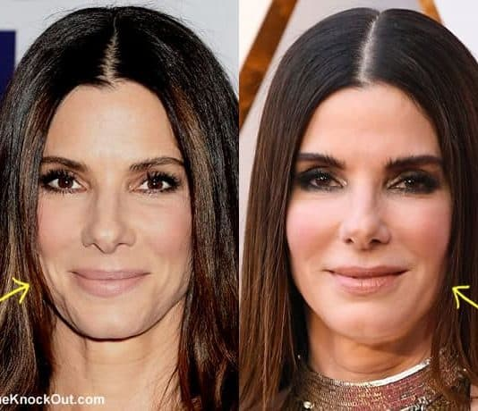 Has Sandra Bullock had a facelift?