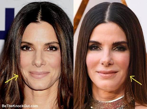 Has Sandra Bullock had a facelift?