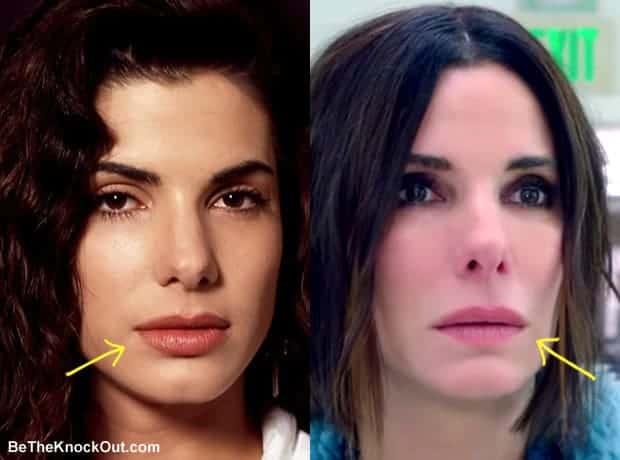 Did Sandra Bullock get lip injections?
