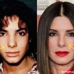 Did Sandra Bullock have a nose job?