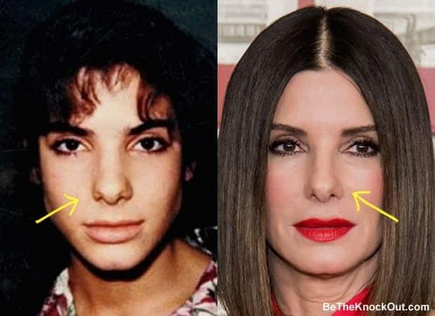 Did Sandra Bullock have a nose job?