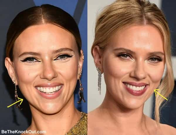 Did Scarlett Johansson have botox?