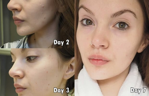 Strawberry cleanser 1 week result