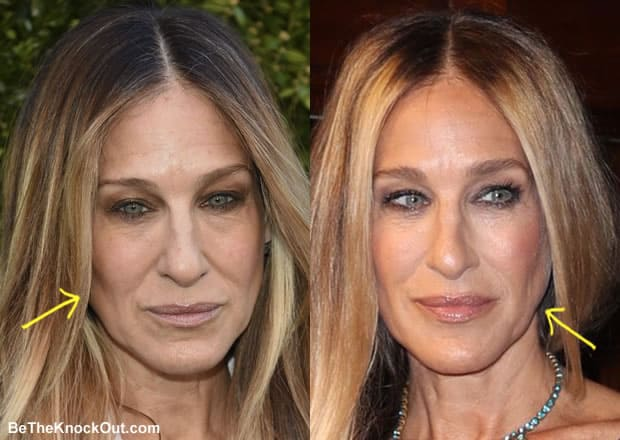 Did Sarah Jessica Parker have botox?