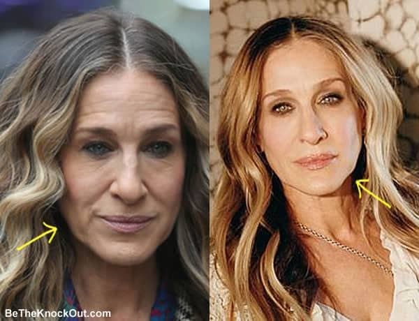 Has Sarah Jessica Parker had a facelift?