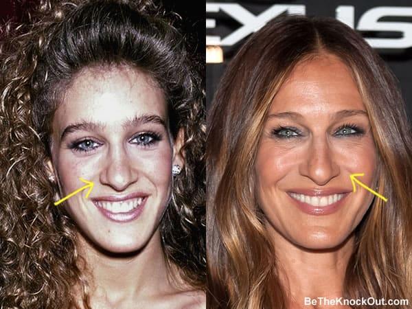 Did Sarah Jessica Parker have a nose job?