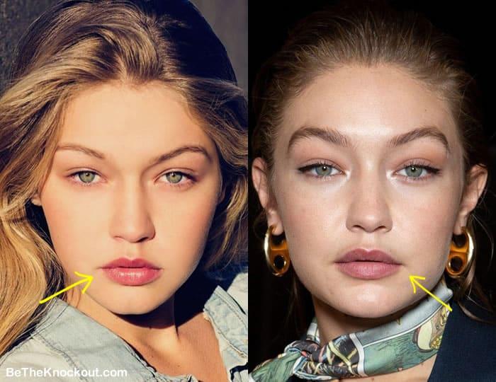 Did Gigi Hadid get lip injections?