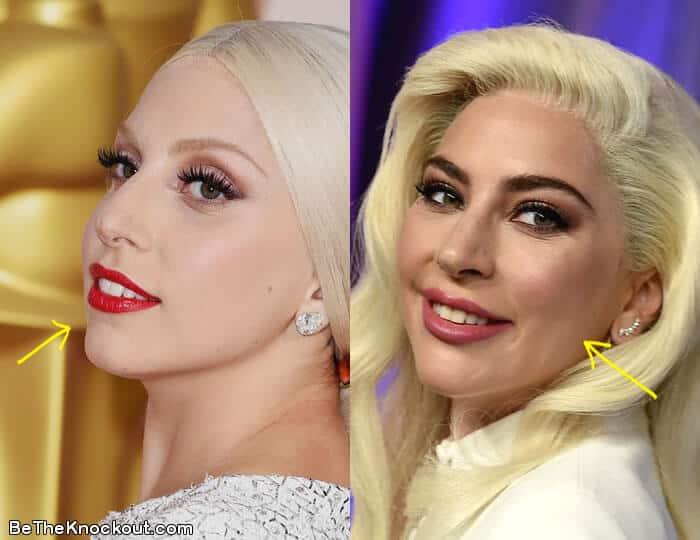 Did Lady Gaga have botox?