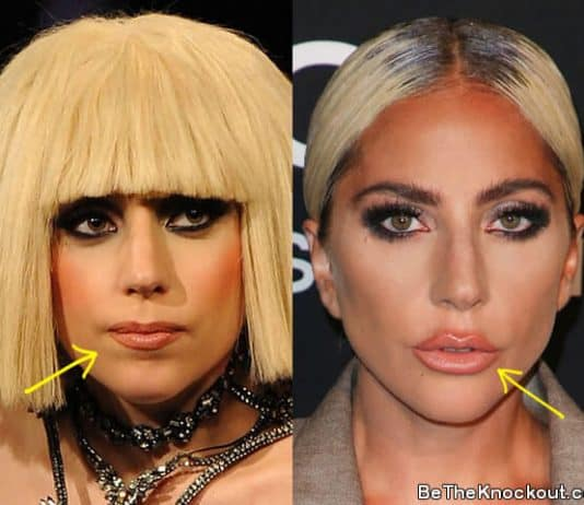 Lady Gaga lip injections before and after comparison photo