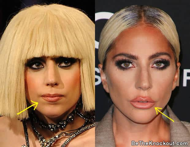 Did Lady Gaga get lip injections?