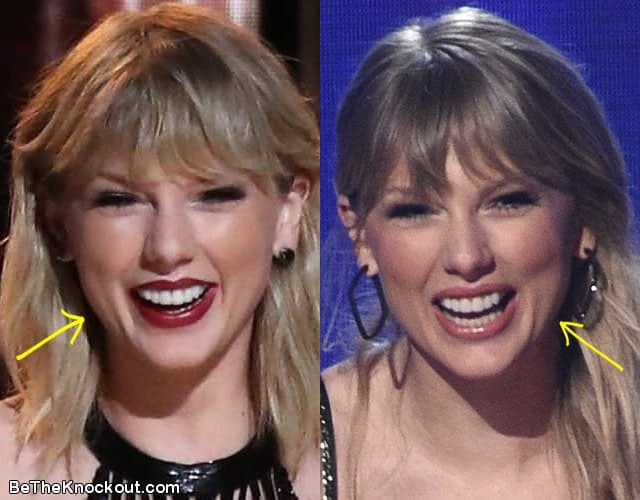Taylor Swift botox before and after comparison photo