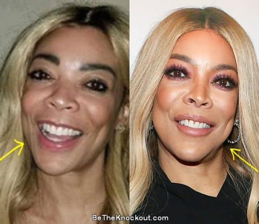 Wendy Williams botox before and after comparison photo