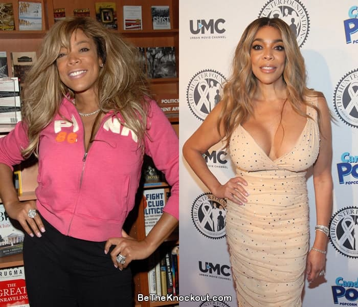 Wendy Williams breast implants before and after comparison photo