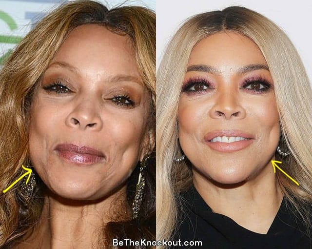 Wendy Williams facelift before and after comparison photo