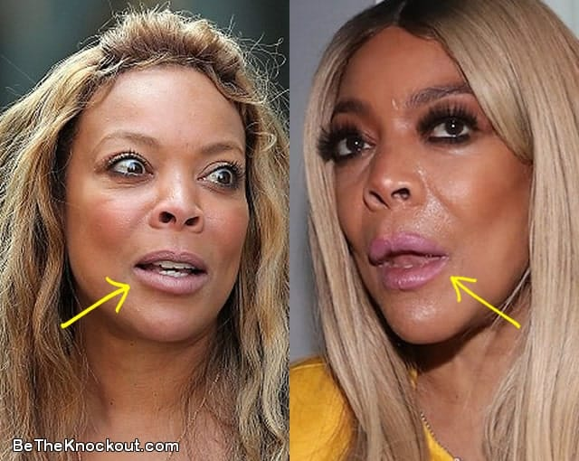 Wendy Williams lip fillers before and after comparison photo