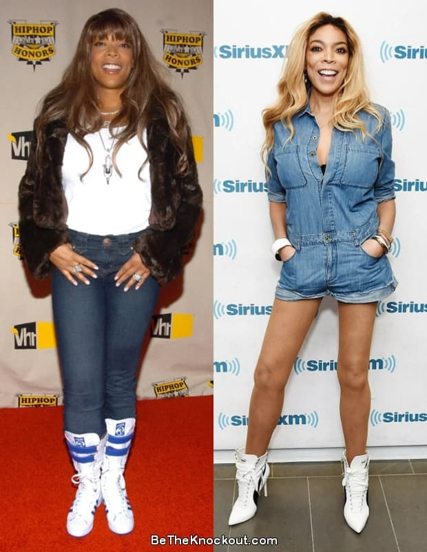 Wendy Williams liposuction before and after comparison photo