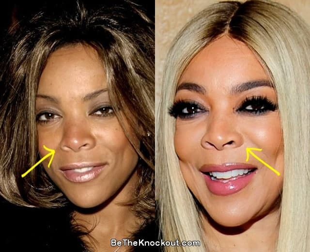 Wendy Williams nose job before and after comparison photo