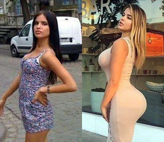 Anastasia Kvitko butt lift before and after photo comparison