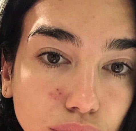 Dua Lipa has skin problems too