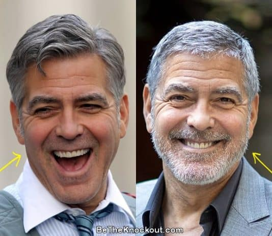 George Clooney botox before and after photo comparison