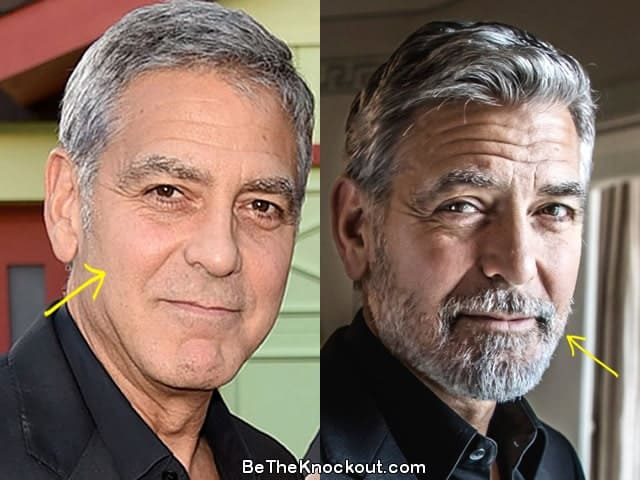 George Clooney facelift before and after photo comparison