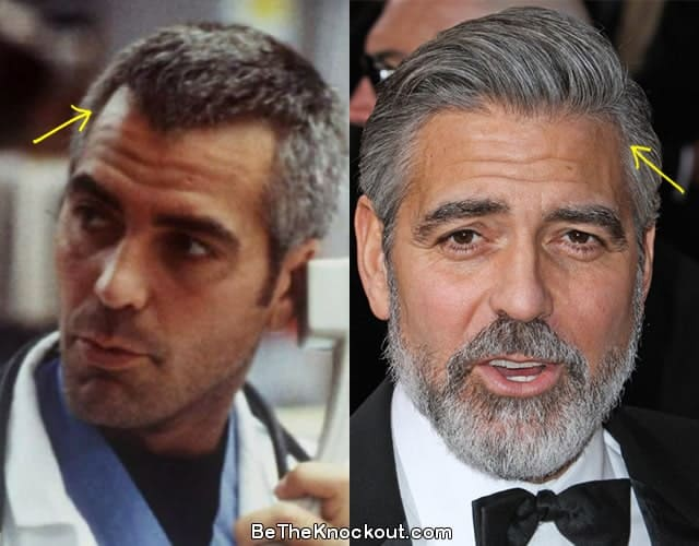 George Clooney hair transplant before and after photo comparison