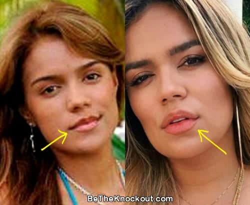 Karol G lip injections before and after comparison photo